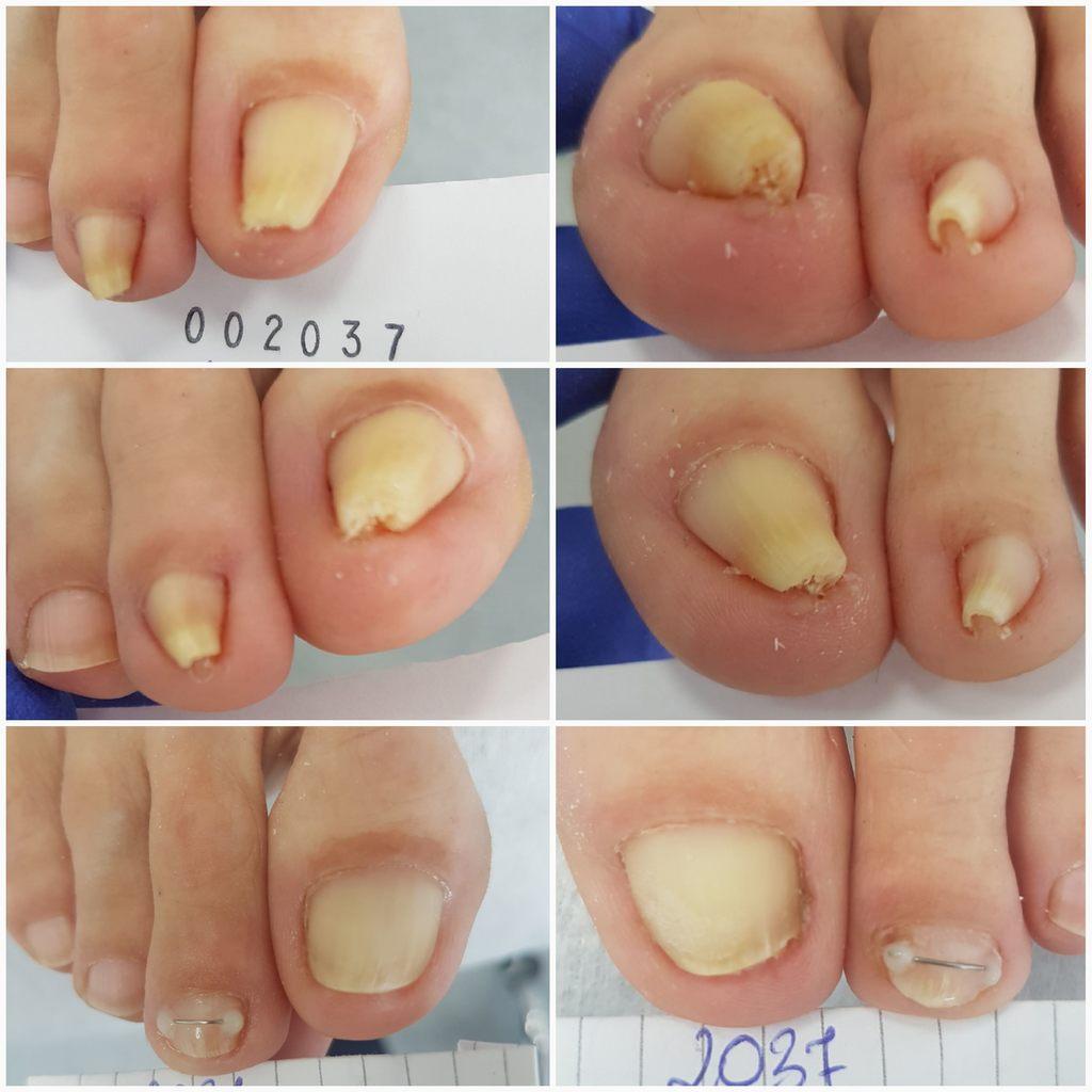 Terapia paznokcia wkręcającego