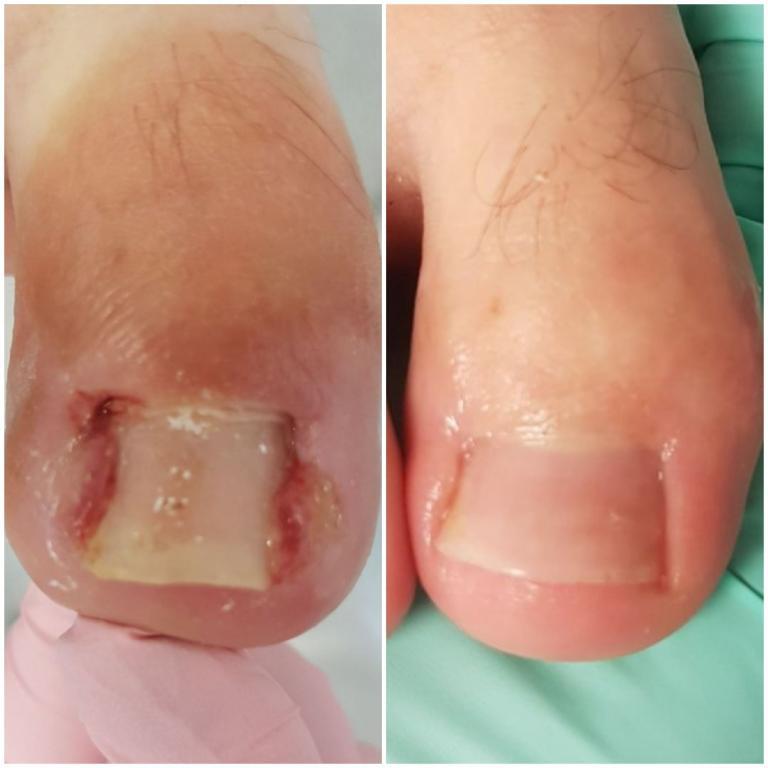 Terapia paznokcia wrastającego w stanie zapalnym